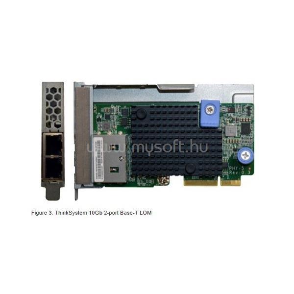 LENOVO LENOVO szerver LAN - 10Gb 2-port Base-T LOM (ThinkSystem)